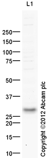 Western blot - Anti-p53 DINP1 antibody (ab154877)