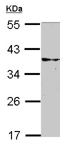 Western blot - Anti-CRALBP antibody (ab154898)