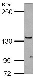 Western blot - Anti-RENT1/hUPF1 antibody - N-terminal (ab154903)