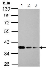 Western blot - Anti-C20orf77 antibody (ab154910)