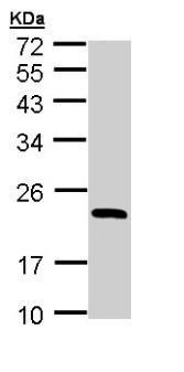 Western blot - Anti-RBP4 antibody (ab154914)