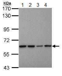 Western blot - Anti-Proteasome 26S S3 antibody (ab154939)