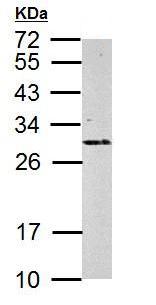 Western blot - Anti-RPS3 antibody (ab154953)
