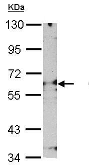 Western blot - Anti-Proteasome 26S S3 antibody (ab154963)
