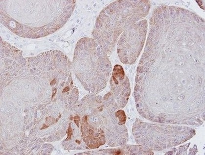 Immunohistochemistry (Formalin/PFA-fixed paraffin-embedded sections) - Anti-Proteasome 26S S3 antibody (ab154963)