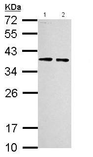 Western blot - Anti-RPLP0 antibody (ab154970)