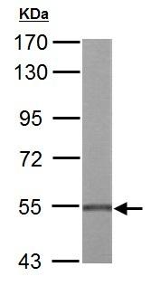 Western blot - Anti-UDP glucose dehydrogenase antibody (ab155005)
