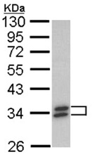 Western blot - Anti-SULT1A1 antibody (ab155012)