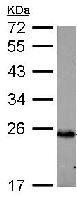 Western blot - Anti-C1QA antibody (ab155052)