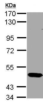 Western blot - Anti-STK33 antibody (ab155056)