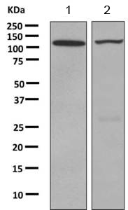 Western blot - Anti-PKN beta antibody [EPR3511(2)] (ab155076)