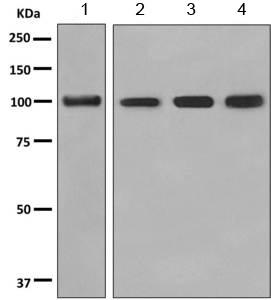 Western blot - Anti-PHF11 antibody [EPR10910] (ab155077)