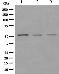 Western blot - Anti-HARS antibody [EPR9451(ABC)] (ab155087)