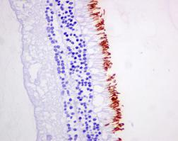 Immunohistochemistry (Formalin/PFA-fixed paraffin-embedded sections) - Anti-Rhodopsin antibody [EPR7996] (ab155097)