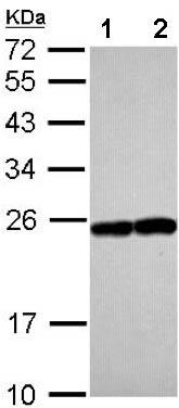 Western blot - Anti-Rab17 antibody (ab155135)