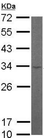 Western blot - Anti-RPL8 antibody (ab155136)