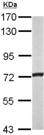 Western blot - Anti-ACADVL antibody (ab155138)