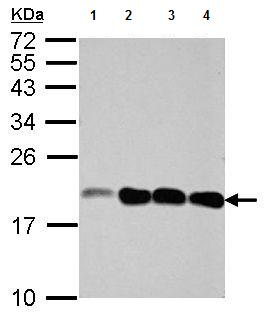 Western blot - Anti-NCALD antibody (ab155161)