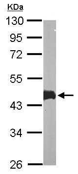 Western blot - Anti-MAPKAP Kinase 3 antibody (ab155178)