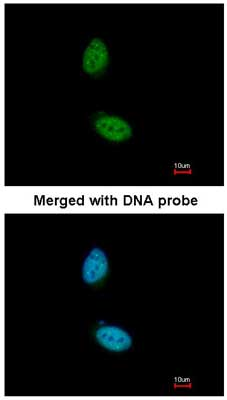 Immunocytochemistry/ Immunofluorescence - Anti-ZNF134 antibody (ab155190)