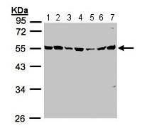 Western blot - Anti-MST3 antibody (ab155198)