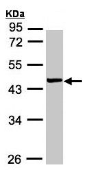 Western blot - YL1 antibody (ab155237)