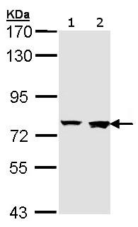 Western blot - Rabenosyn 5 antibody (ab155247)