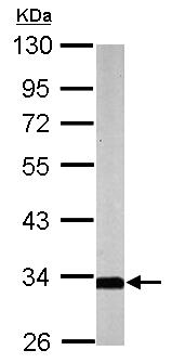 Western blot - SLC25A22 antibody (ab155250)