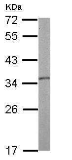 - Anti-Tropomyosin 1 (alpha) antibody (ab155260)