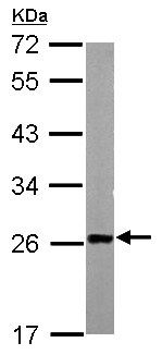 Western blot - Anti-SM22 alpha antibody (ab155272)