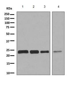 Western blot - Anti-SAR1B antibody (ab155278)
