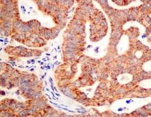 Immunohistochemistry (Formalin/PFA-fixed paraffin-embedded sections) - Anti-SAR1B antibody (ab155278)