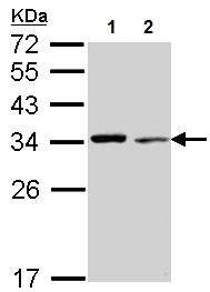 Western blot - Anti-TPM4 antibody (ab155293)