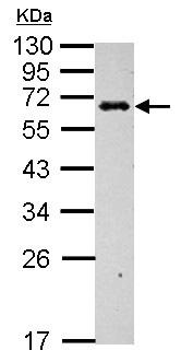Western blot - Anti-C4 binding protein antibody (ab155312)