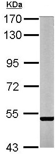 Western blot - Anti-STEP / PTPN5 antibody (ab155329)