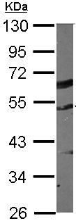 Western blot - TUBA6 antibody (ab155330)