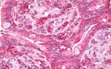 Immunohistochemistry (Formalin/PFA-fixed paraffin-embedded sections) - Anti-Chymotrypsin antibody (ab155400)