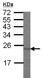Western blot - Anti-eIF3A antibody (ab155412)