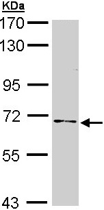 Western blot - Anti-NUMB antibody (ab155415)
