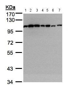 Western blot - Anti-alpha Actinin antibody (ab155480)