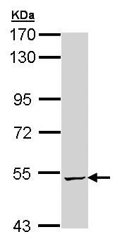 Western blot - Anti-ALDH5A1 antibody (ab155493)