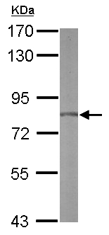 Western blot - Anti-Hypothetical Protein FLJ21908 antibody (ab155500)
