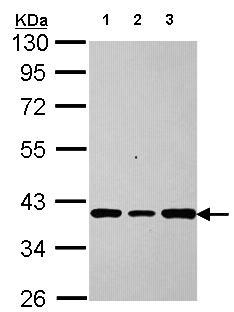 Western blot - Anti-AKR7A2 antibody (ab155528)