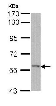 Western blot - Anti-RIP2 antibody (ab155529)