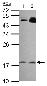 Western blot - Anti-RGS8 antibody (ab155537)