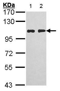 Western blot - Anti-HGS antibody - C-terminal (ab155539)