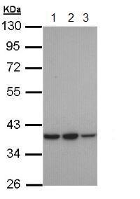 Western blot - Anti-RAI3 antibody - N-terminal (ab155557)