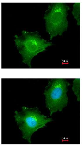 Immunocytochemistry/ Immunofluorescence - Anti-MAP4K4 antibody (ab155583)