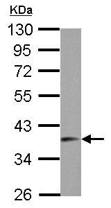 Western blot - Anti-SNRNP40 antibody (ab155592)