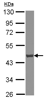 Western blot - Anti-ATP6V0D1 antibody (ab155594)